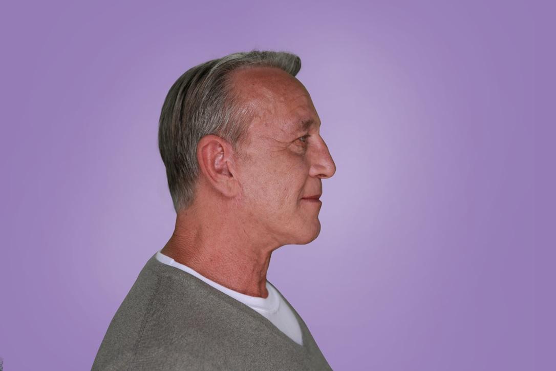 Bill, Age 63